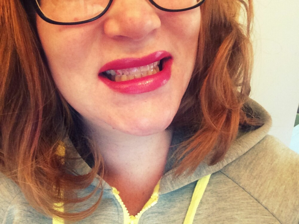 KLASSIKER: Leppestift på tenna har de aller fleste opplevd, men det er heldigvis enkelt å unnga.