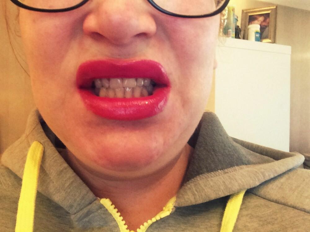 GULE TENNER: Det er aldri gøy å forelske seg i en leppestift som får tenna til å se gule ut.
