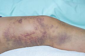 MISFARGING I HUDEN: Misfargede områder i huden kan skyldes flere årsaker. Flere av dem er harmløse, men en del av dem bør sjekkes opp hos lege.