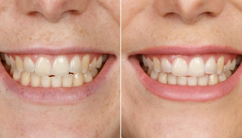 TEST AV TANNKREM: Oral-B 3D White LUXE. FOTO: Petter Berg