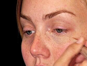 TUSJ PÅ: Det er lett å legge tusjconcealer. Bare tusj rett på huden og jevn ut fargen med fingrene. Voilá!
