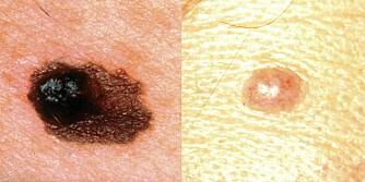A/E: Bildet til venstre viser en asymmetrisk (A) føflekk med en hevelse (E=elevation). Bildet til høyre viser en føflekk som er symmetrisk.