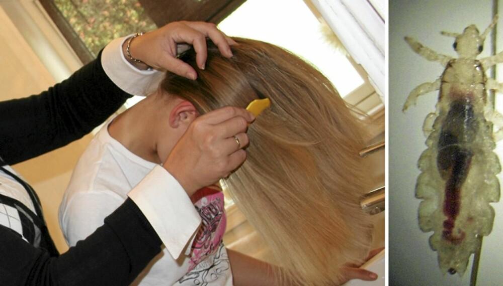 LUS: Det er mest effektivt å sjekke om du har lus i tørt hår. Anne Louise Leikfoss kjemmer datteren Jeanette Leikfoss (13) over vasken, for det er lettere å oppdage lus på hvitt underlag.