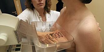 KUL I BRYSTET: For at man skal kunne kjenne kulen i brystet, må den vanligvis være rundt 1 cm i diameter. Kuler som er mindre enn det, kan oppdages på ultralyd eller mammografi.