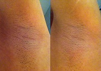 FØR OG ETTER: Som man ser, så er det flere høvler som ikke barberer optimalt under armene. En god høvel skal også få med seg de minste stubbene.
