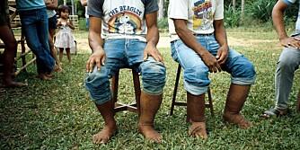 HEVELSER: To filipinske brødre med elephantiasis.