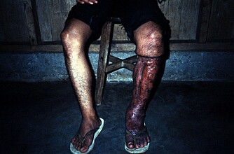 ETTER OPERASJON: Mann som led av elephantiasis.