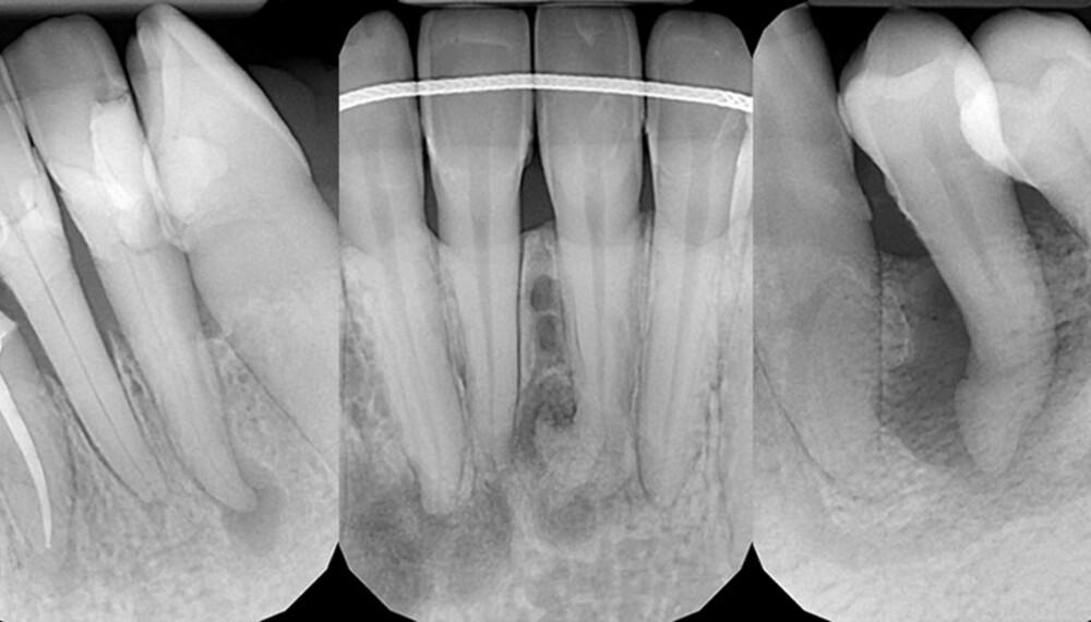 BETENNELSE I TANN: Her er tre røntgenbilder som viser hvordan det kan gå når man får en betennelse i tannen/tannroten om man ikke tetter hull, og det kommer bakterier inn i tannen fra utsiden.   De mørke flekkene/sirklene er betennelse som har ført til at kjevebeinet blir betent og etterhvert blir borte. – Alle disse tre tennene gjør nok relativt vondt, sier Dan Stensen, tannlege ved Denpro. Foto: Denpro tannklinikk.