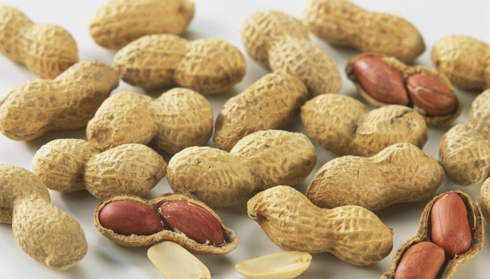 NØTTEALLERGI: Allergi mot peanøtter og andre nøtter er en av de vanligste og mest alvorlige. Foto: Getty Images