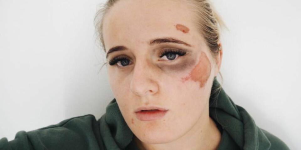 TRUSLER: Da Martine Halvorsen postet dette bildet etter å ha blitt slått ned på gata, fikk hun grove trusler om voldtekt. FOTO: Privat