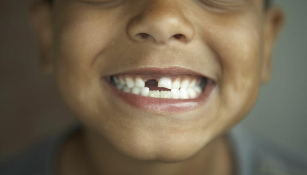 BARN OG TENNER: Når kommer 6-årsjekselen? Og når kommer 12-årsjekselen? Vi gir deg oversikten over alt du trenger å vite om barnas tenner. FOTO: Getty Images.