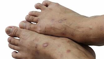 Psoriasis er en kronisk hudsykdom.