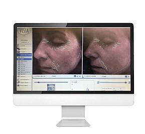 Vibeke sin hud før og etter behandling