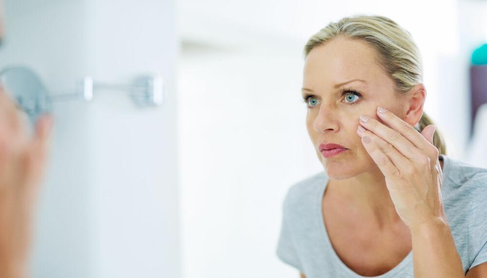 PIGMENTFLEKKER: Har du en lys hudtype kan du være mer disponert for pigmentflekker som kommer av soleksponering.