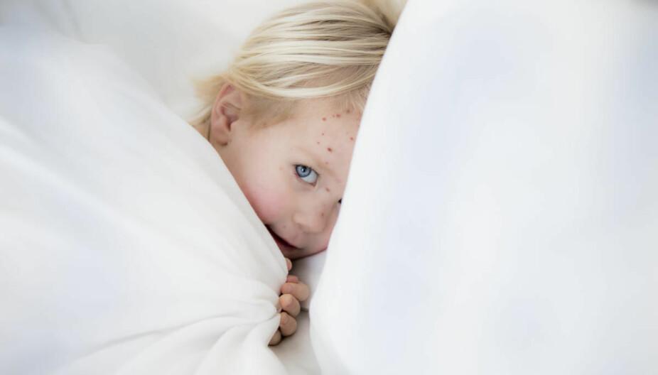 Det skyldige viruset gir først vannkopper, men i verste fall kan det samme viruset dukke opp igjen og gi helvetesild.