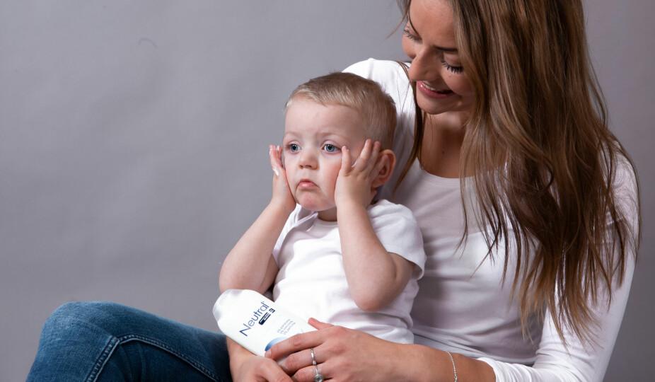 FOREBYGG PLAGENE: Pass spesielt godt på å smøre ansiktet, halsen, albuer og føttene nå. Har barnet ditt eksem kan det oppleves som aller verst på vinteren.