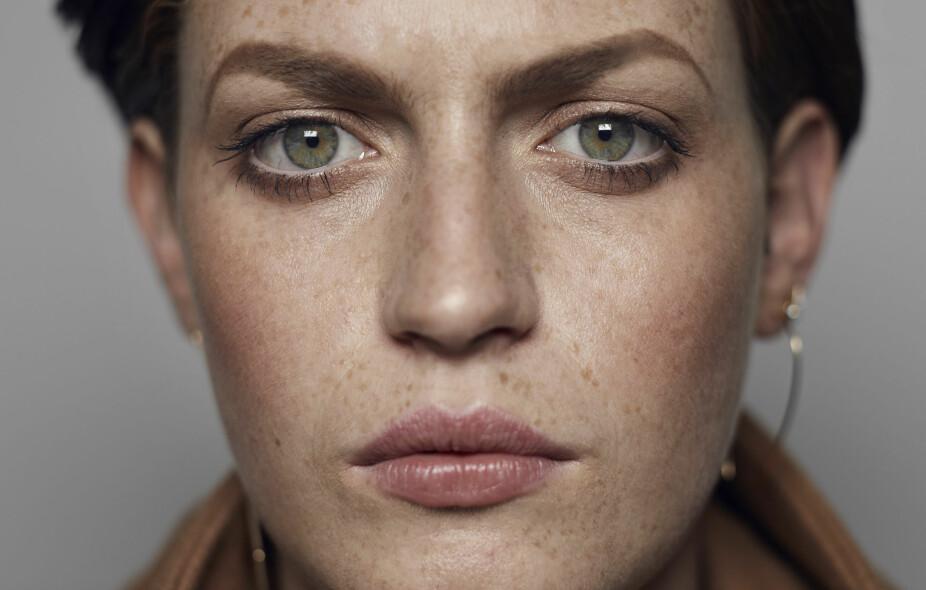 TØRR HUD: Mange får tørr hud av smnke.Ofte er den tørre huden en T-form, over panne og nese.