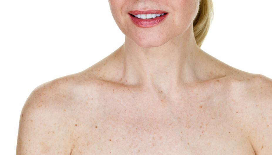 VANLIG: En kvinne med såkalte leverflekker på overkroppen. Sola kan være årsaken.