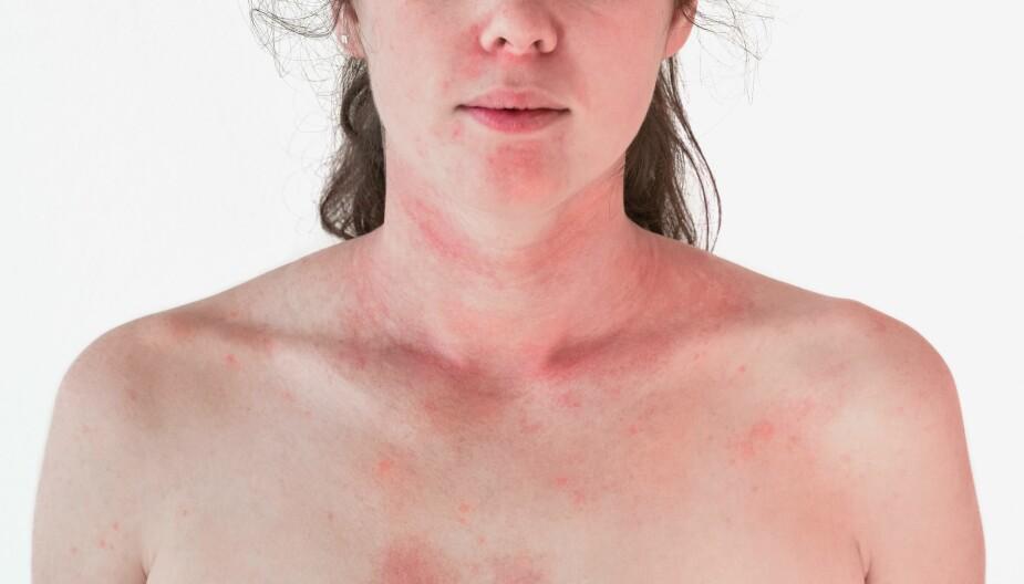 ATOPISK EKSEM HOS VOKSNE: Symptomene på atopisk eksem er kløe og tørr hud. Noen får så intens kløe at de klør seg til blods.