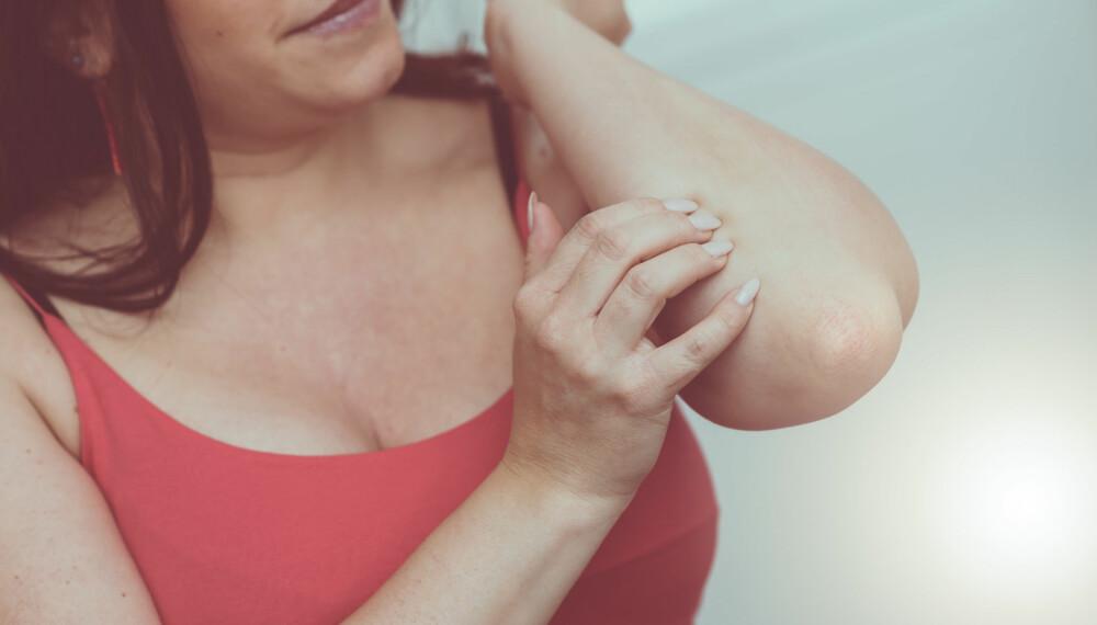 TØRR HUD: Kløe kan være et resultat av tørr hud, gjerne på vinteren, og fuktighetskremer kan hjelpe.