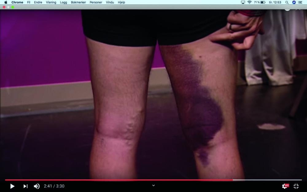 <b>STYGG SKADE:</b> Sigurd Sollien fikk stygge blåmerker da han pådro seg en muskelskade i lysken på dansetreningen..