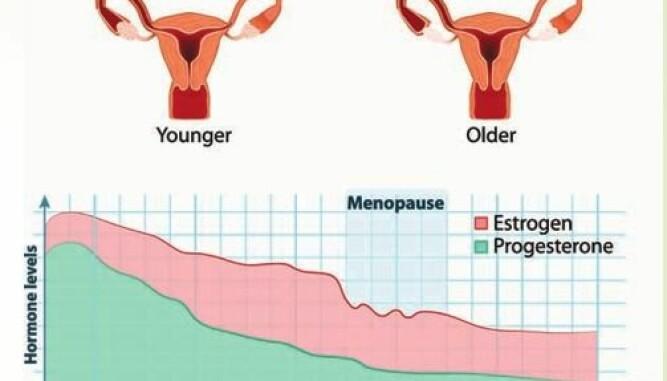 OVERGANGSALDEREN: De fleste kommer i overgangsalderen i 50-årene. Noen av symptomene er redusert sexlyst og tørrhet i skjeden.